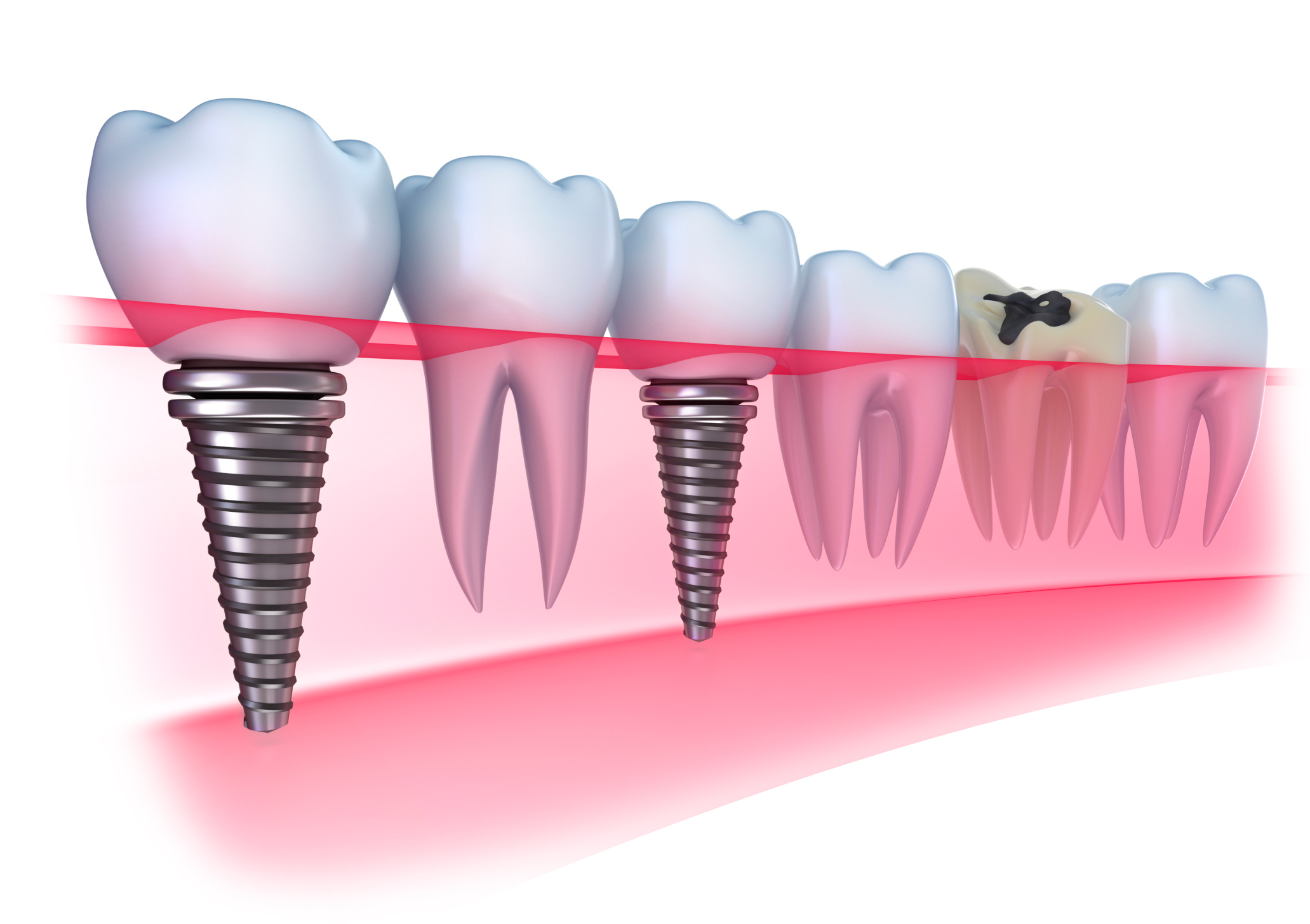 dental-implants-illustration1